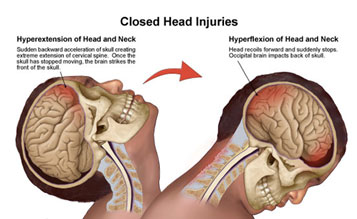 Image result for head trauma